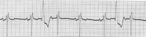 This is what my EKG looks like some of the time